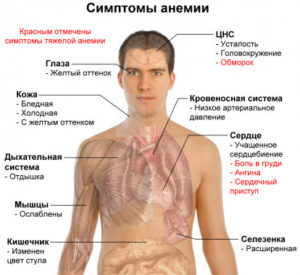 анемия тяжелой степени