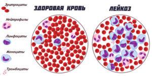 Что такое бластные клетки в анализе крови