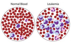 бластные клетки в анализе крови