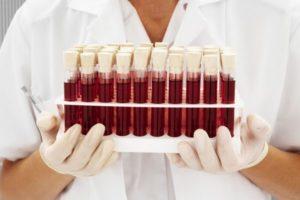 группы крови у мужчин