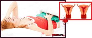 Как девушке определить: обильные месячные или кровотечение