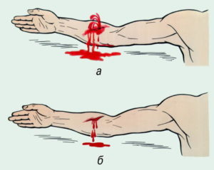 Как должна быть оказана первая помощь при ранениях и кровотечениях