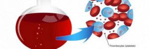 Как эффективно понизить уровень тромбоцитов в крови