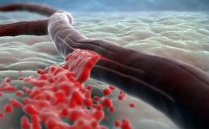 Как и чем лечится острая постгеморрагическая анемия