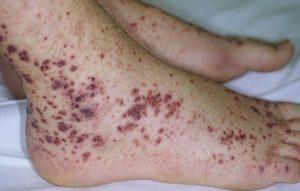 Как и чем лечится тромбоцитопеническая пурпура у детей