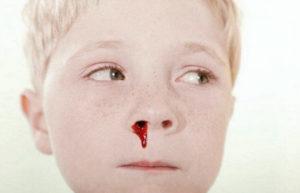 лечить носовое кровотечение у детей