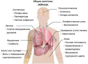 острый лимфобластный лейкоз у взрослых