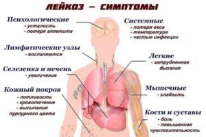 Как лечить острый лимфобластный лейкоз у взрослых