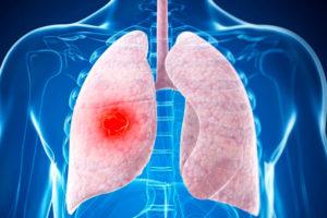 лечится лимфома легких