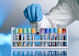 Как можно эффективно понизить уровень СОЭ в крови