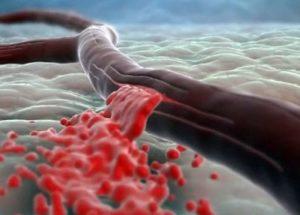 Влияние методик аборта на характер кровотечений