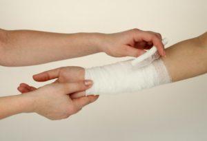 Как остановить кровотечение при ранении вены и некрупных артерий