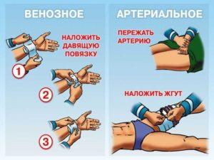 кровотечение при ранении вены и некрупных артерий