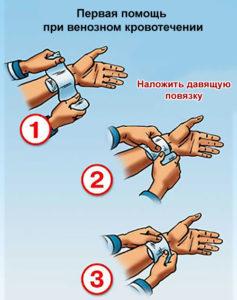 Как осуществляется остановка венозного кровотечения