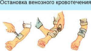 становка венозного кровотечения