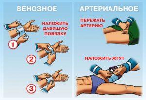Алгоритм остановки венозного кровотечения