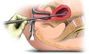 Как проводится выскабливание полости матки при кровотечении