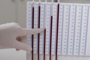 анализ крови на СОЭ по Панченкову