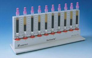 Как сдается анализ крови на СОЭ