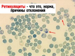Какая норма ретикулоцитов в крови у взрослых и детей