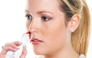 Какие основные причины кровотечения из носа у женщин