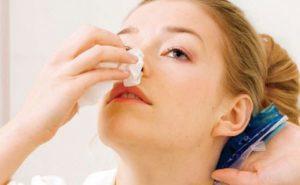 причины кровотечения из носа у женщин