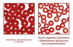 лечение гипохромной микроцитарной анемии