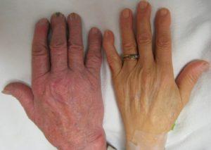 Какие симптомы имеет хроническая гипохромная анемия и лечение