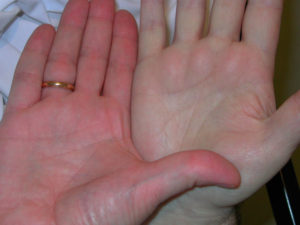 симптомы имеет хроническая гипохромная анемия и лечение
