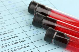 содержание фибриногена в крови