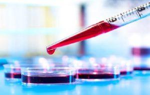 содержание мочевой кислоты в крови у мужчин