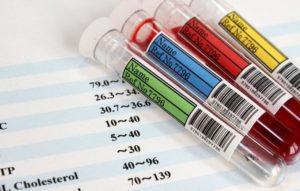Какой должна быть норма биохимического анализа крови у женщин