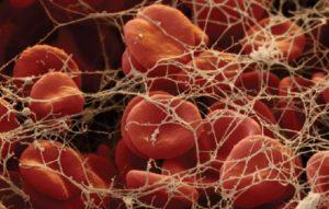норма фибриногена в анализах крови