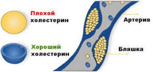 Каковы нормы холестерина в крови у женщин разных возрастов