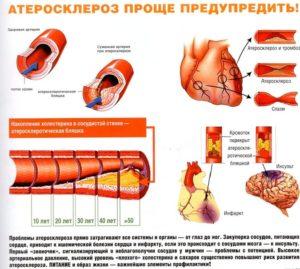 нормы холестерина в крови у женщин разных возрастов