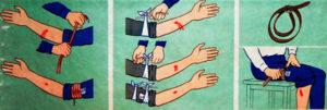 наложить жгут на конечность при кровотечении