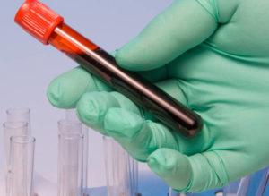 Норма сывороточного железа в крови у женщин и мужчин