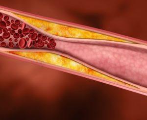 Норма уровня холестерина в крови у мужчин разного возраста