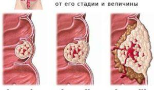 Основные причины, по которым может быть кровь после дефекации без боли