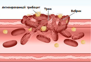 лечение плохой свертываемости крови у детей и взрослых