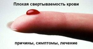 плохой свертываемости крови
