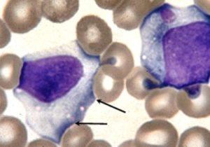 Почему могут быть атипичные мононуклеары в крови у ребенка