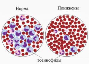 Почему могут быть понижены нейтрофилы в крови у ребенка