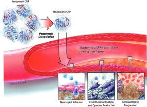 Почему повышен цереактивный белок в крови