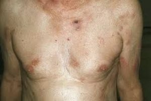 лечение Т-клеточной лимфомы