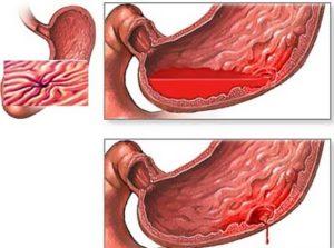 лечение паренхиматозного кровотечения
