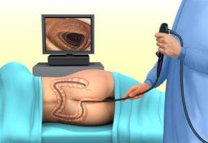 Симптомы и лечение ректального кровотечения