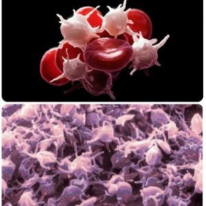 Содержание крупных тромбоцитов