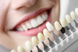 Сколько стоят виниры и коронки на зубы